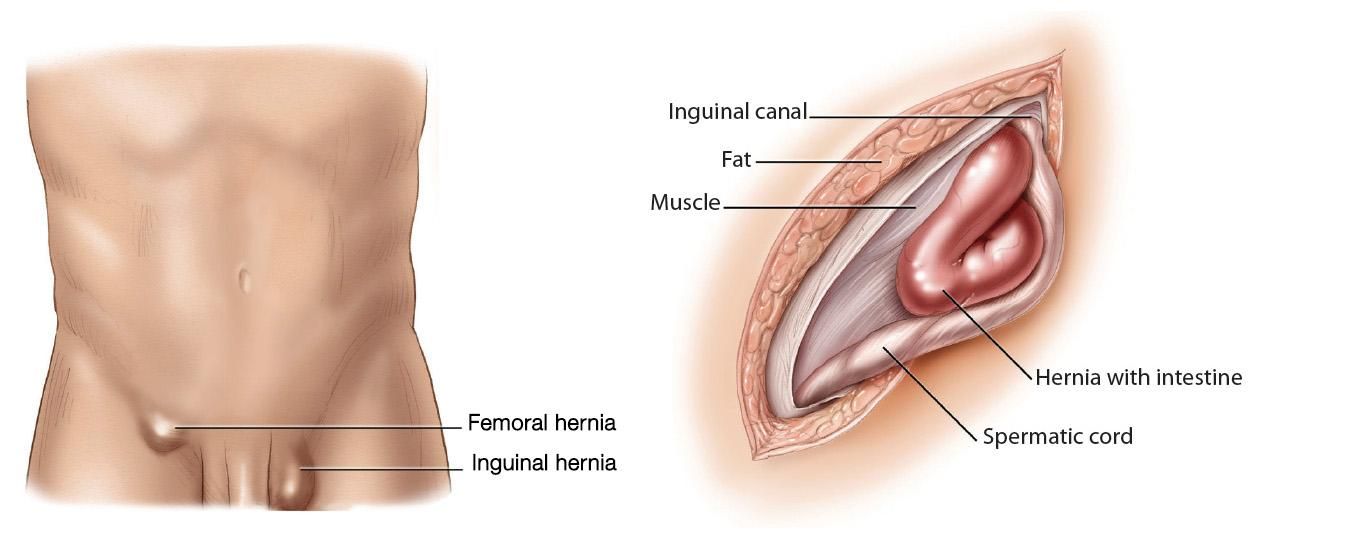 Diagram of abdomen with inguinal and femoral hernias